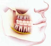 Опухла щека зуб болит как снять опухоль в домашних условиях